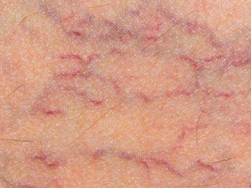 varices-tratamientos-orihuela-tipos-varices