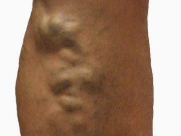 clinica-varices-elche-tipos-varices